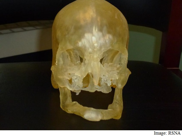 3D Printing to Help Guide Human Face Transplants