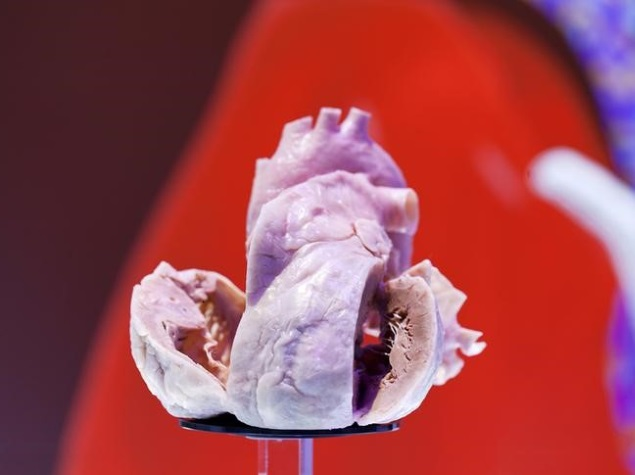 Clockwork Heart Pacemaker Does Away With Batteries