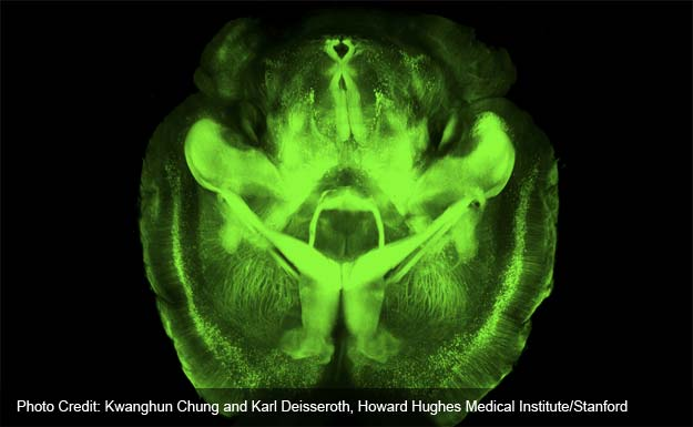 Brains as clear as jell-o for scientists to explore