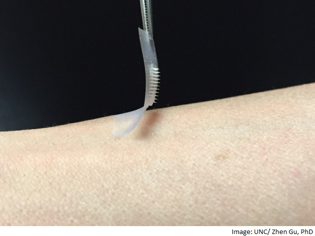 New Insulin 'Smart Patch' Could Help Diabetes Patients
