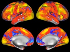 US NIH Presents 10-Year-Plan for BRAIN Project