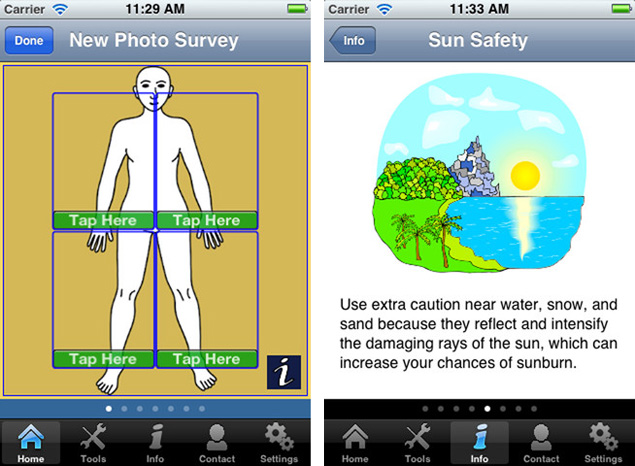 Free mobile app for skin cancer screening   Technology News