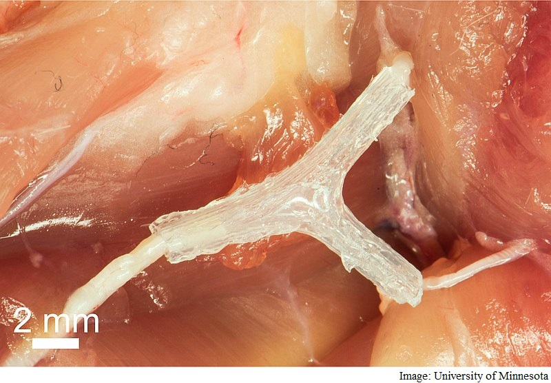 3D-Printed Guide Helps Regrow Nerve After Injury