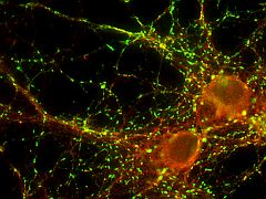 Insight Into How Memories Are Made Could Herald Alzheimer's Treatments